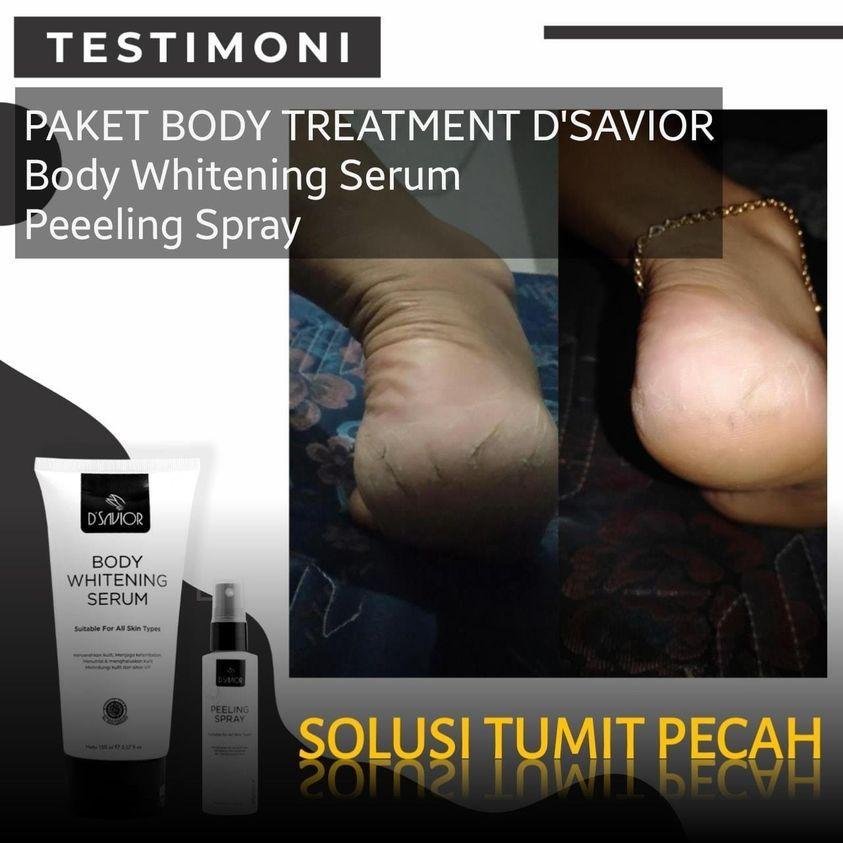 DSAVIOR BODY SERUM REVIEW PEMUTIH KULIT TUBUH 1