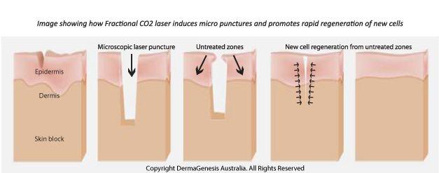 Cara menyembuhkan kulit berlubang bekas jerawat 6